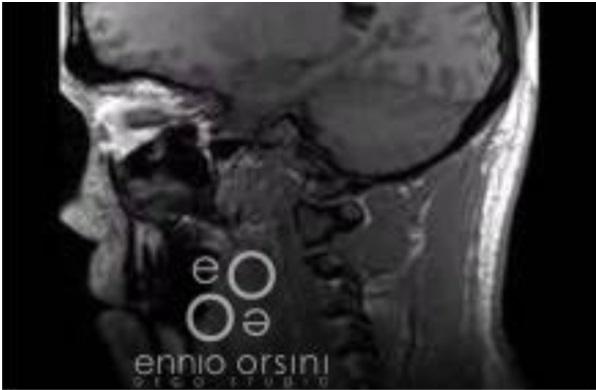 Czy Badanie Metodą Rezonansu Magnetycznego U Osób U